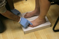 West Hollywood chiropractor orthotic casting